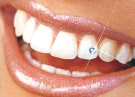 как украсить свои зубы